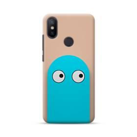 Xiaomi Mi A2 Cases